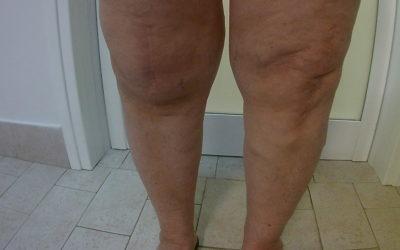 Dolore al ginocchio e anca e loro relazioni anatomiche con colonna vertebrale