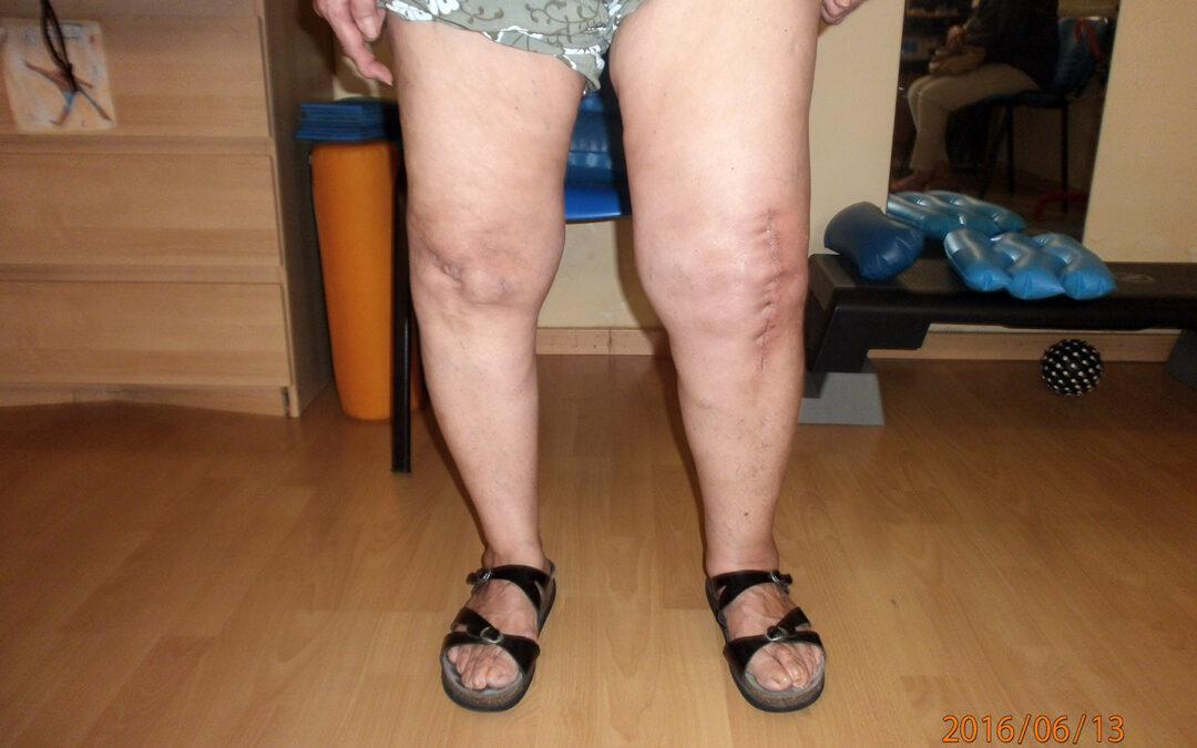 Dolore al ginocchio e anca